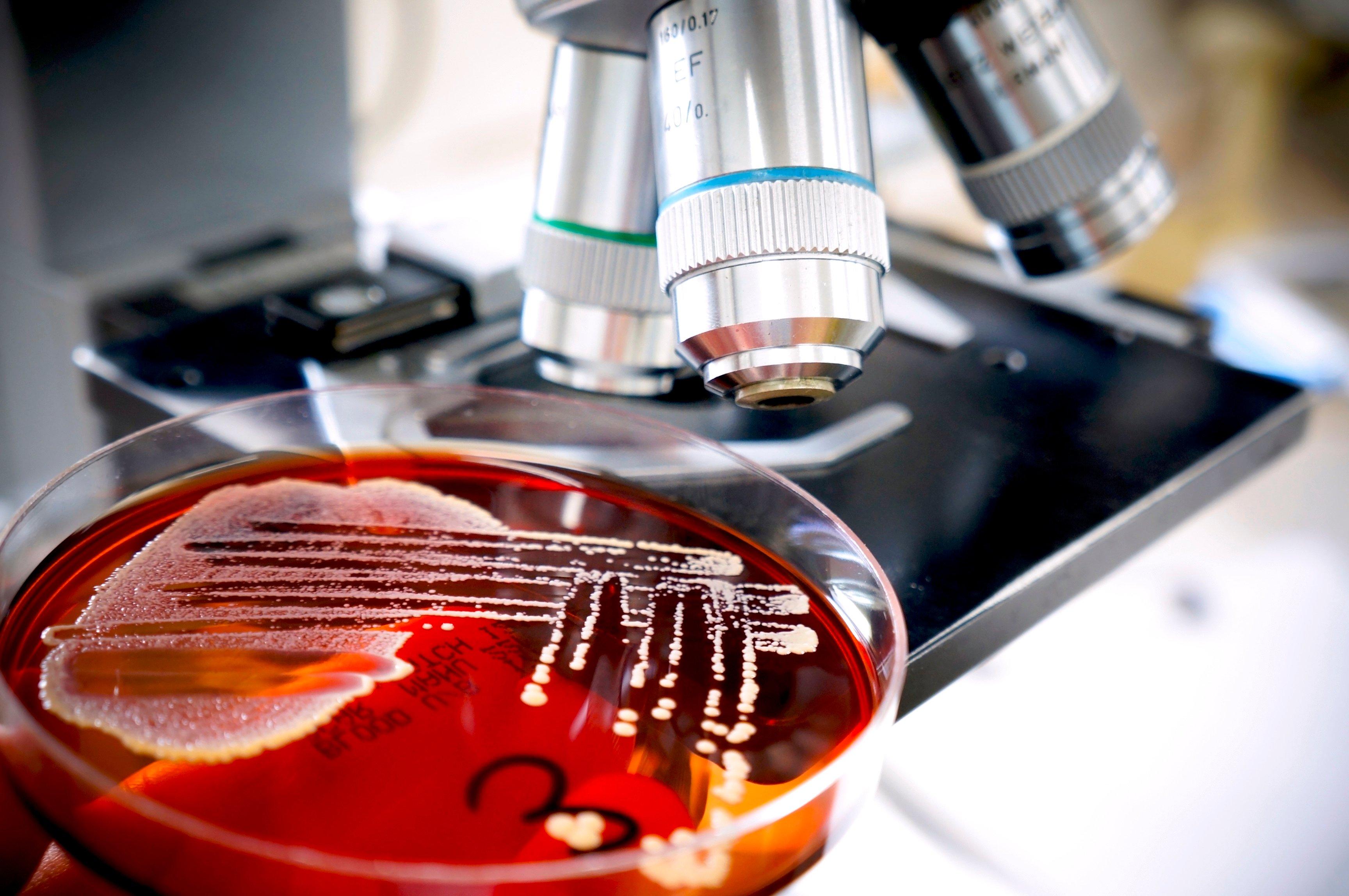 Legionella_Testing_Methods